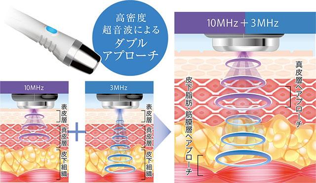 高密度超音波の解説図